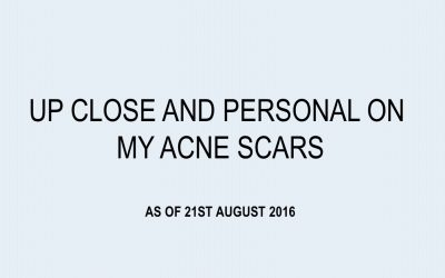 Okay, I'm baring it all! Up close and personal on my acne scars