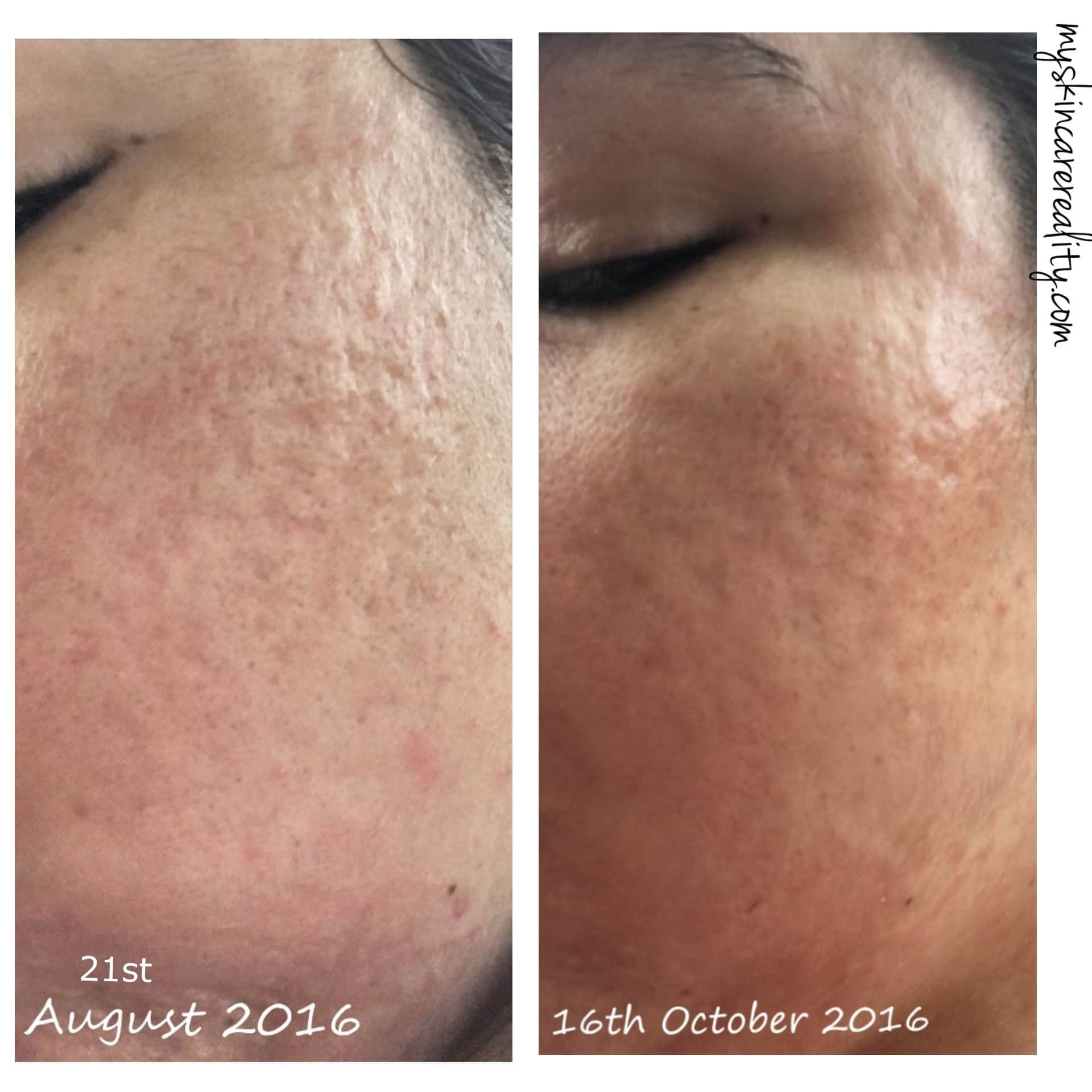 Indented Acne Scars | Skin Progress Pictures Update 1