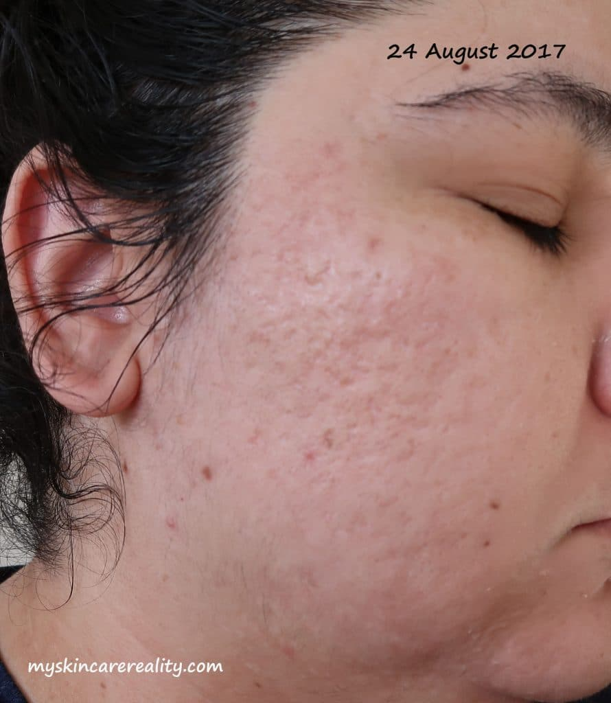 Acne Progress Photos