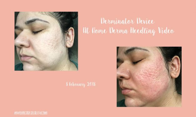 Derminator At Home Derma Needling Device Video | 8 February 2018
